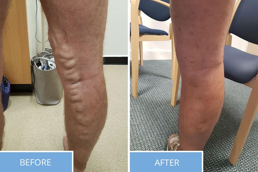 Varicose Vein Treatments Example
