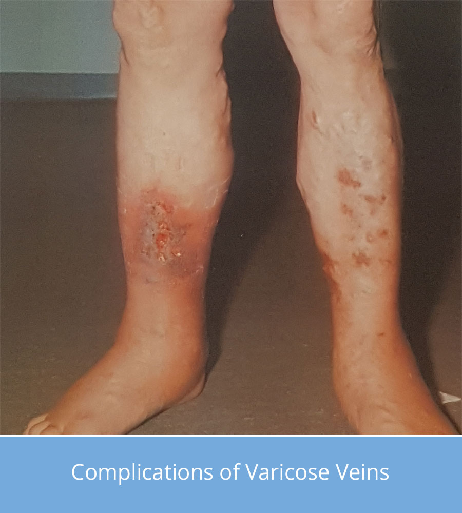 varicose veins rash
